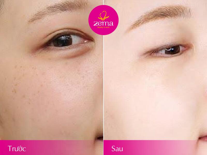 Làn da được phục hồi khi điện di tăng cường collagen