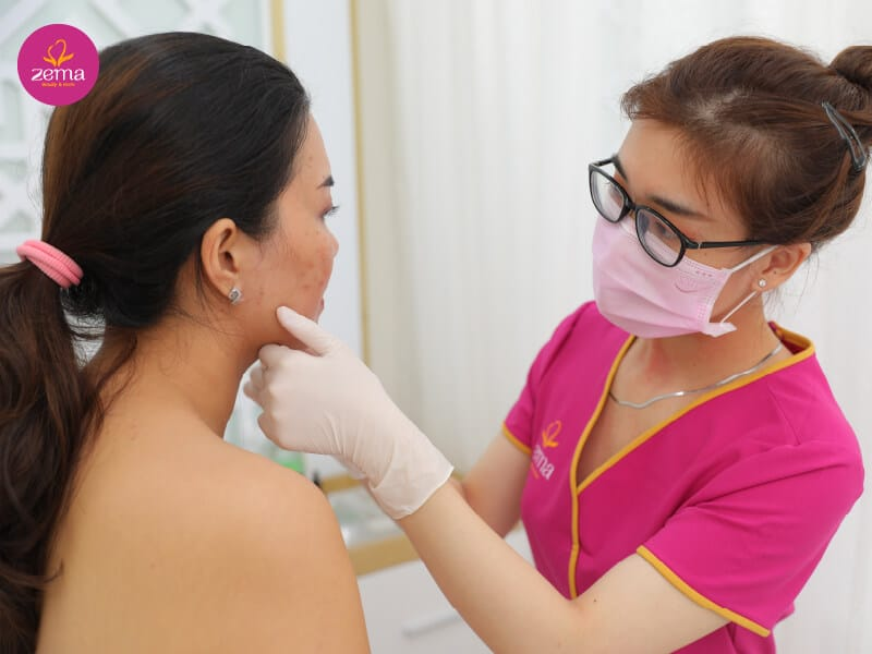 Điều trị da mụn bằng laser có nhiều lợi ích bên cạnh một làn da sạch mụn