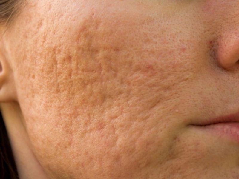 Sẹo rỗ trên da khiến làn da mất đi vẻ căng mịn vốn có