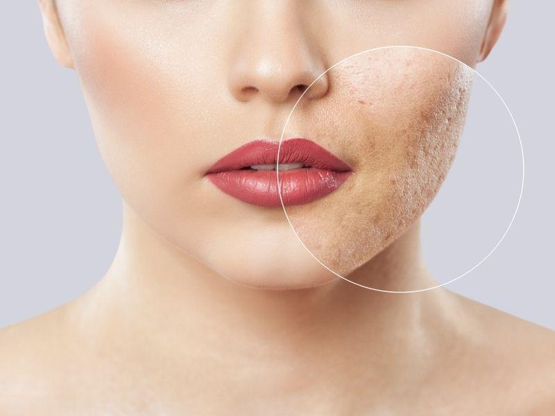 Cách nhanh nhất để loại bỏ sẹo rỗ chính là dùng phương pháp laser