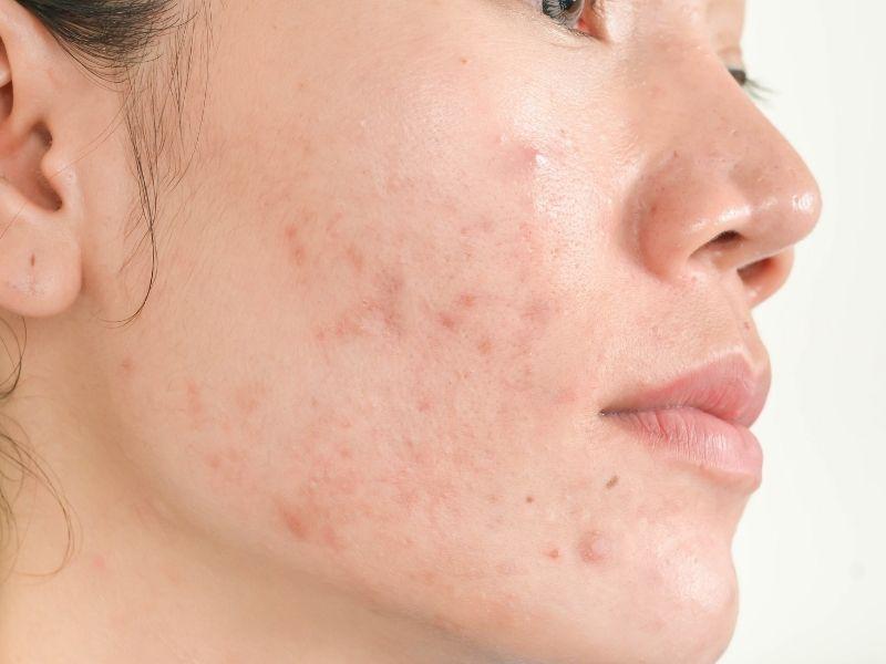 Nếu trị mụn sai cách mụn sẽ nặng hơn, từ đó làm da dễ bị thâm