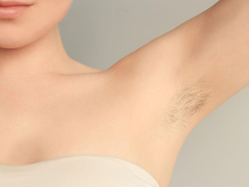 Vùng nách đầy lông luôn mang lại những trở ngại cho phụ nữ