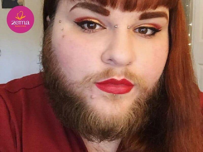 Nữ cũng có thể có râu quai nón