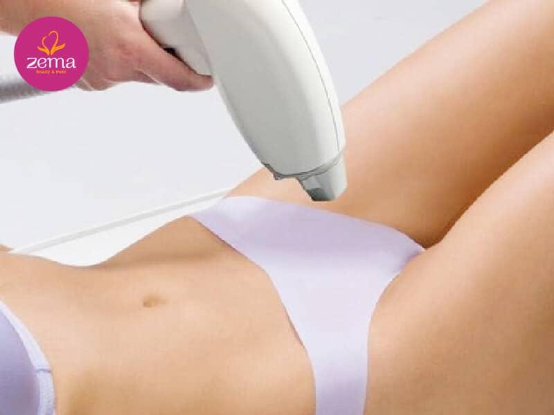 Triệt lông bikini với ánh sáng E-light