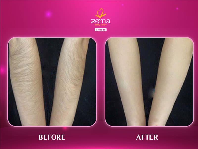 Triệt lông mang lại nhiều lợi ích cho làn da