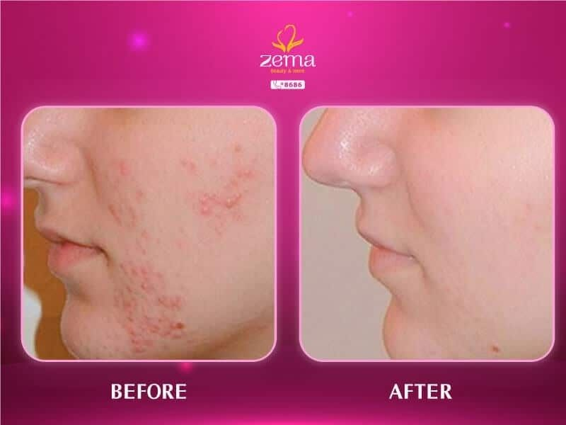Làm da sạch mụn sau khi được Zema Spa điều trị