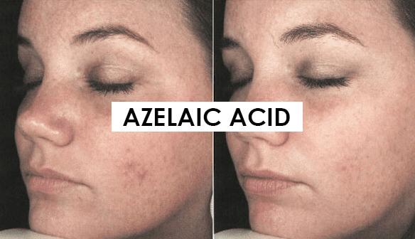 Bảo vệ da với kem chống nắng khi sử dụng axit azelaic